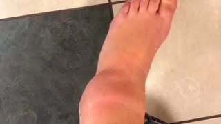 Broken ankle Leg Cast and Cast Removal