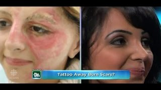 Amazing: Tattoo Artist Uses Ink To Cover Burn Victims Scars!