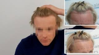 Blond hairline restored using FUE hair transplantation