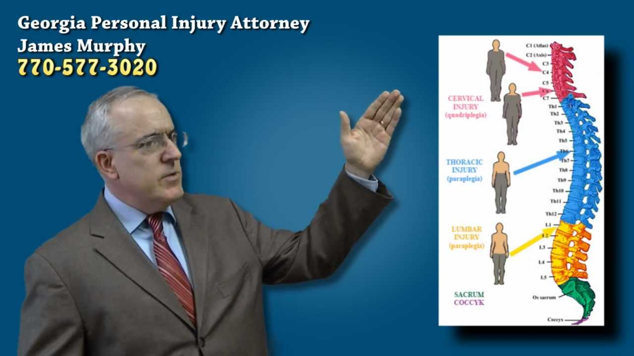 Slip And Fall Lawyer Clarence NY