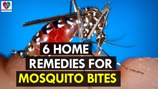 Home Remedies for Mosquito Bites - Health Sutra