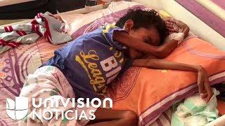 Hambre en Venezuela: Fallece por desnutrición niño de 12 años que pesaba 11 kilos