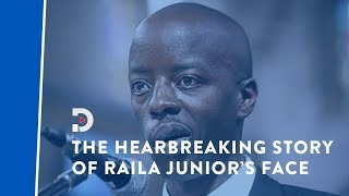 The heartbreaking story of Raila Odinga Junior's medical condition that left him partially paralysed