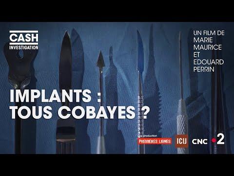 nouvel ordre mondial | Cash investigation - Implants : tous cobayes ? (Intégrale)