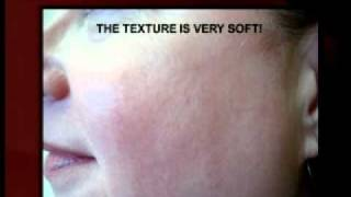 Rosecea testimonial Treatment performed with 532nm Peel.mp4