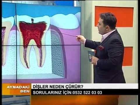 İlker Erdoğan_Dişler Neden Çürür. Kanal tedavisi Nasıl yapılır?