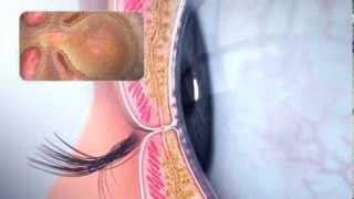 Dry Eye Animation