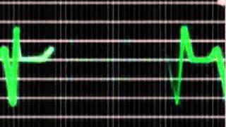 Animação After Effects CS5 - Batida do Coração - Mascara e Shape - Medicina.wmv