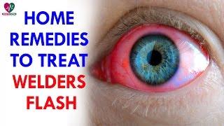 Home Remedies To Treat Welders Flash - Health Sutra