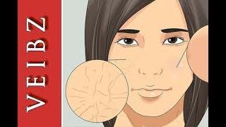 Grosse Poren und Mitesser auf Nase und im Gesicht reinigen entfernen verkleinern und behandeln