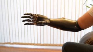 Bebionic v2 - A Mão Biônica Protética mais Avançada do Mundo - Parte 2