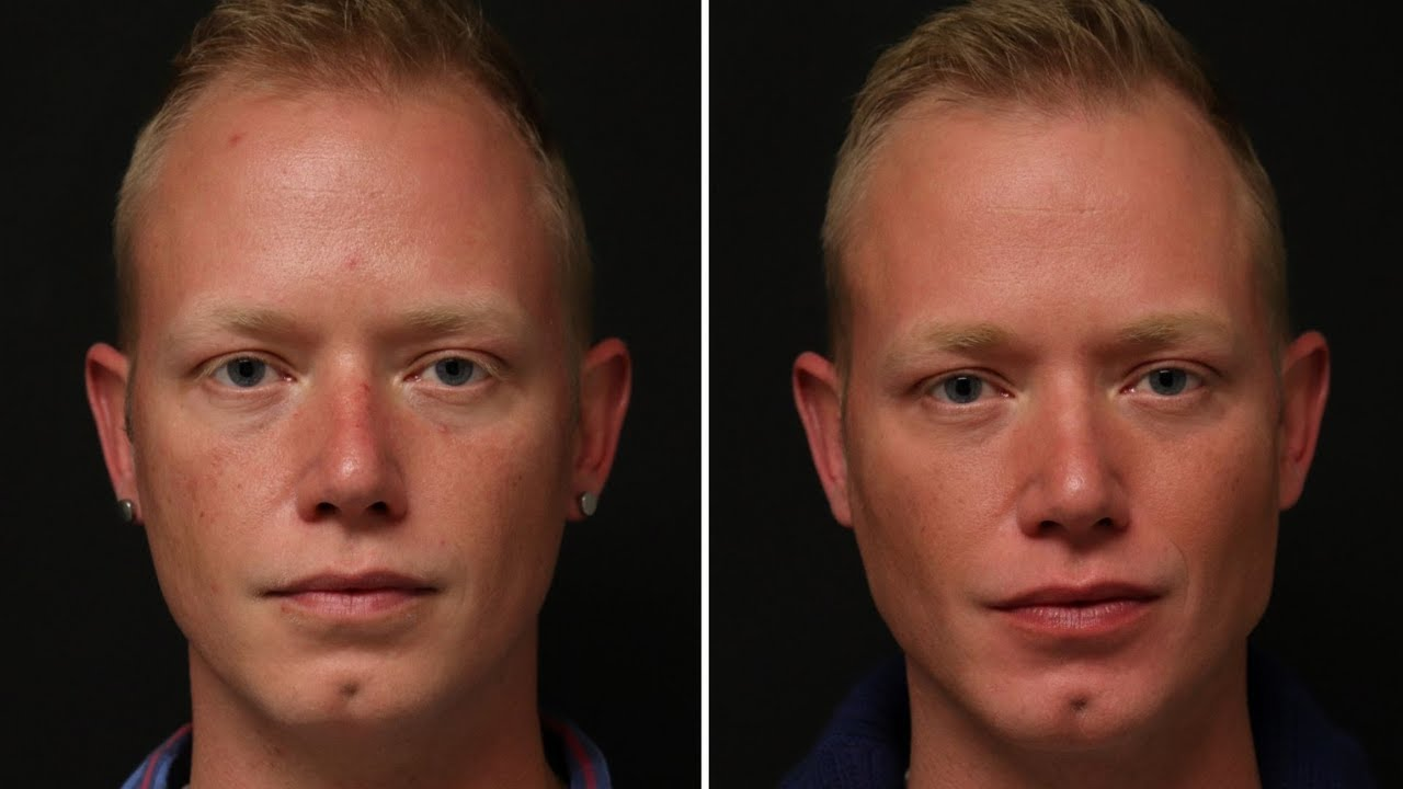 Preview of Dermal filler and Botox Cosmetic®: Brody 33 y.o.