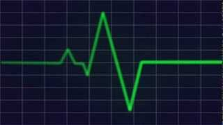 Heart beat monitor HD