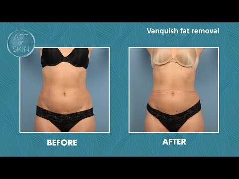 Vanquish Fat Removal California at Art of Skin MD