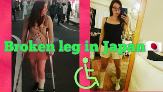 I broke my leg in Japan!