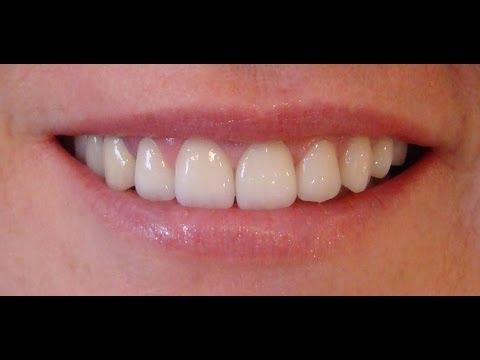 Zirkonyum, zirkonyum diş,zirkonyum kaplama,Porselen Diş Kaplama