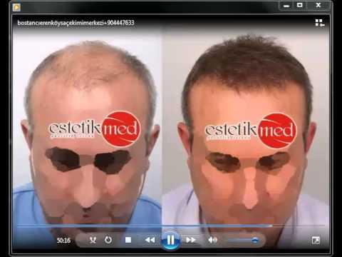 Merkez hastaneleri saç ekimi merkezleri 0216 491 26 96 istanbul saç ekimi merkezleri
