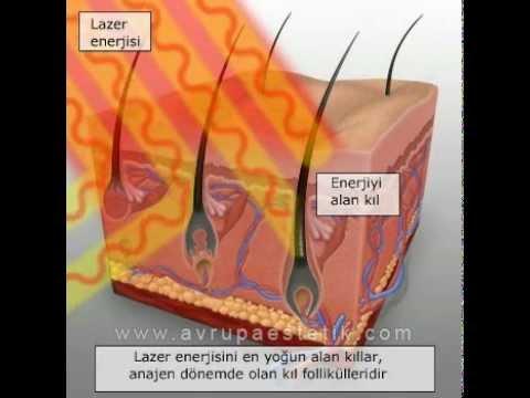 Lazer Epilasyon, Dr. Jülide Bayçın