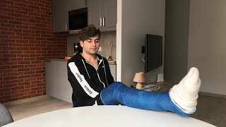 Daniel with his first Long leg cast - LLC