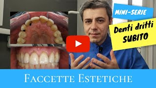 Denti dritti subito: faccette estetiche