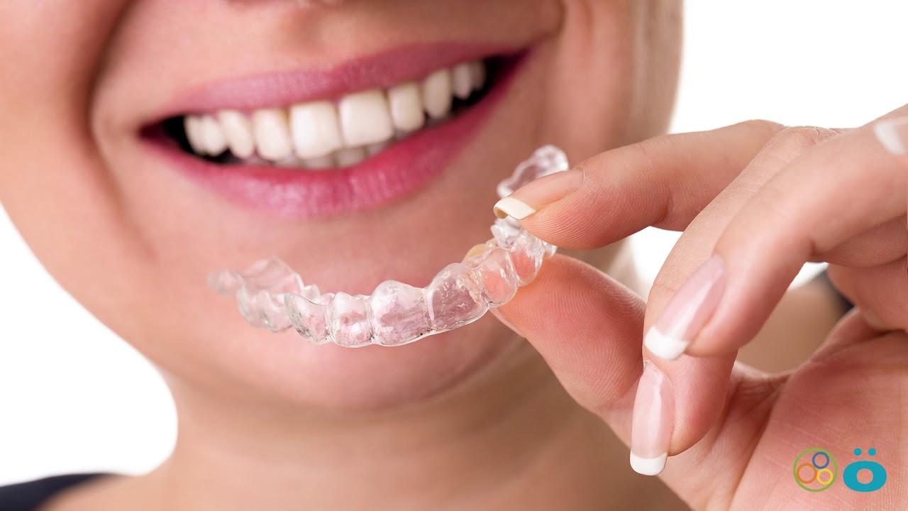 Invisalign | Invisalign Aligners | Renken Dentistry