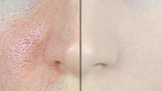 How to Make Pores Disappear! | STEPHANIE LANGE