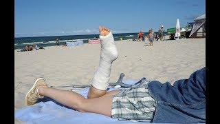 Matilda short leg achilles cast - beach trip