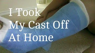 My Life - How To Remove Your Cast At Home