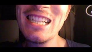 Denti dritti senza apparecchio ma con Bite trasparente : ecco come