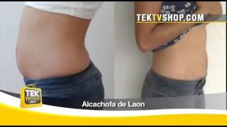 Alcachofa de Laon