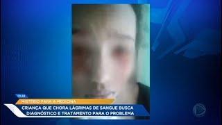 Menina de 11 anos chora lágrimas de sangue