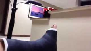 Ankle Fracture Vlog 1 - Trimalleolar Fracture