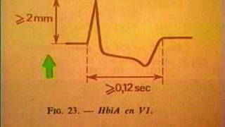 ECG Normal * Electro Cardiograma Normal
