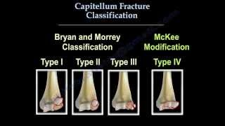 Capitellum Fracture Classification - Everything You Need To Know - Dr. Nabil Ebraheim