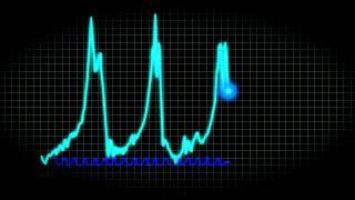 Black Hole EKG