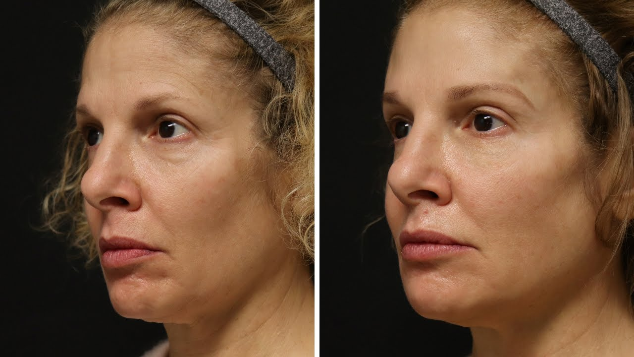 Preview of Dermal filler and Botox Cosmetic®: Jane, 56 y.o.