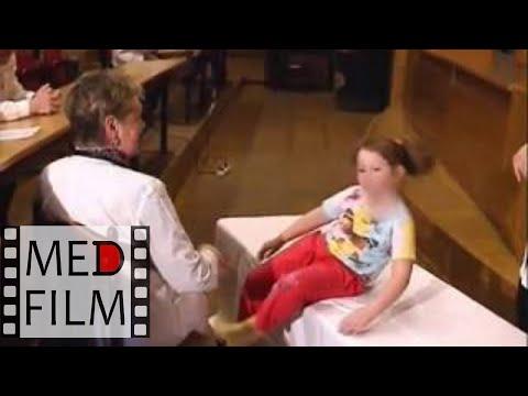 Гломерулонефрит. Клинический разбор в Клинике детских болезней 1МГМУ © photo