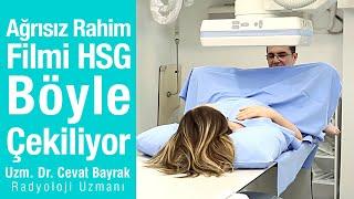 Ağrısız Rahim Filmi HSG böyle çekiliyor | Animasyonlu gerçek video.