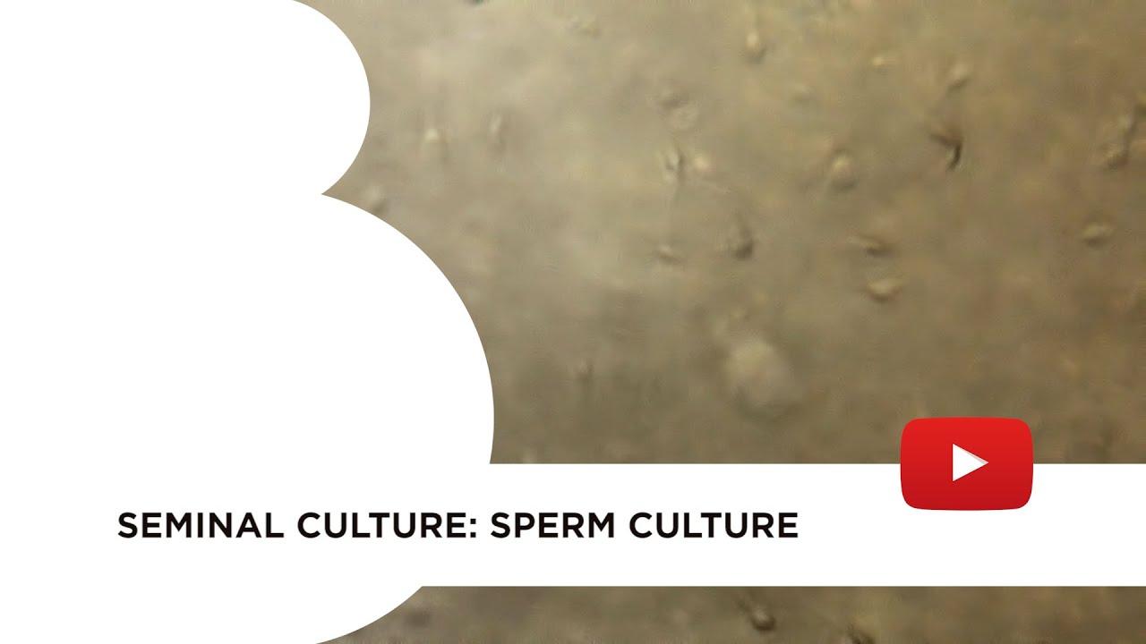 Seminal culture: sperm culture
