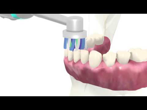 Dental 3d animation orthodontic correction 3d animation tooth replacement  Implants