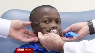 Menino de 8 anos atacado por chimpanzés vai ganhar novos lábios