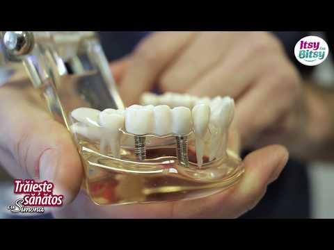 Cum alegi implantul dentar
