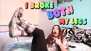 I BROKE BOTH MY LEGS! | Coffee with Carly