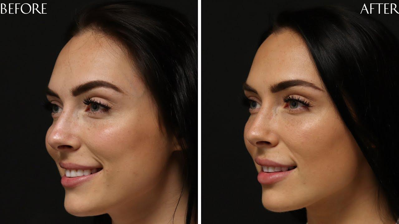 Preview of Dermal filler and Botox Cosmetic®: Sierra 24 y.o.