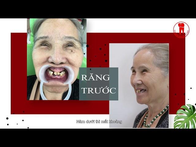 khách hàng Maria Trần review về quá trình trồng răng implant an toàn