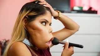 Inspirational Vlogger Redefines Beauty: BORN DIFFERENT