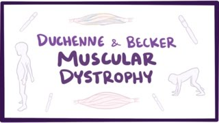 Duchenne & Becker  Video