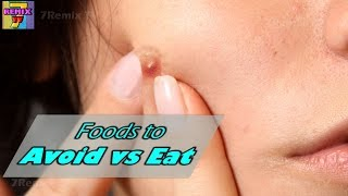 Foods to AVOID and EAT to get rid of Acne & Pimples Breakout