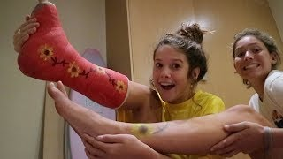 im in a cast...again