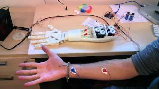 Roujin Project - InMoov Arm  and EMG 1